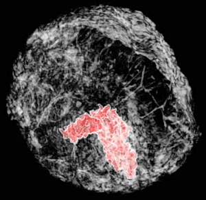 Three-dimensional breast tumor image (ESRF-LMU/Emmanuel Brun)