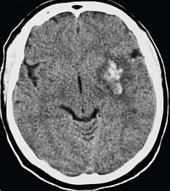 CT scan of stroke victim's brain (National Library of Medicine)