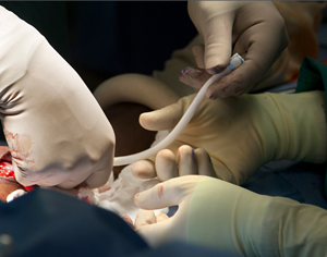 Engineered vein being implanted by surgeons