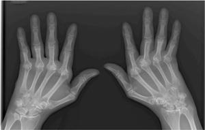 X-ray of arthritic hands