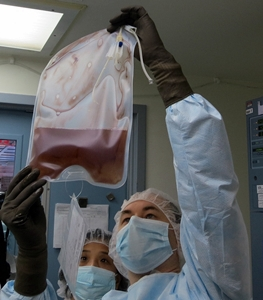 Bag of altered T-cells for infusion