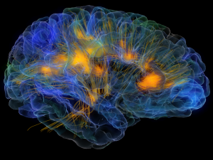 Brain visualization image