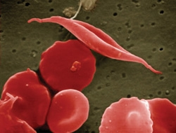 Blood cells with sickle cell disease