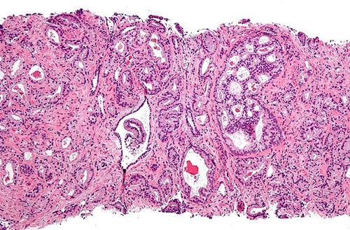 Micropgraph of prostate cancer