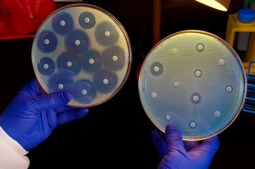 Bacteria growing in petri dishes