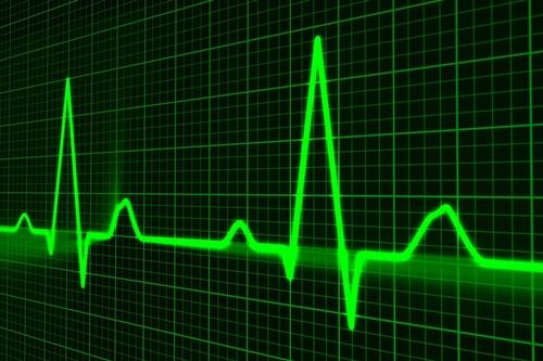 EKG graphic