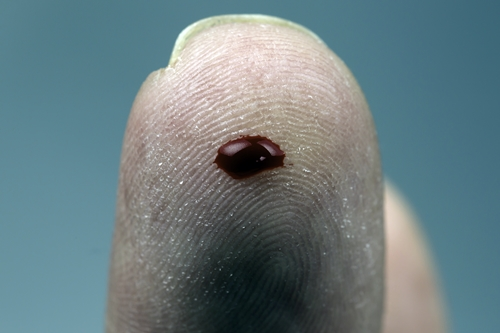 Drop of blood on finger