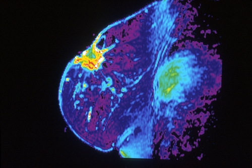 MRI of breast