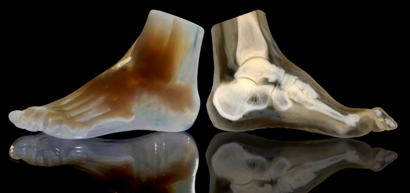 3-D print foot model and CT image