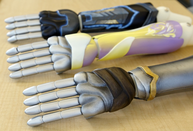 3-D printed prosthetic arms