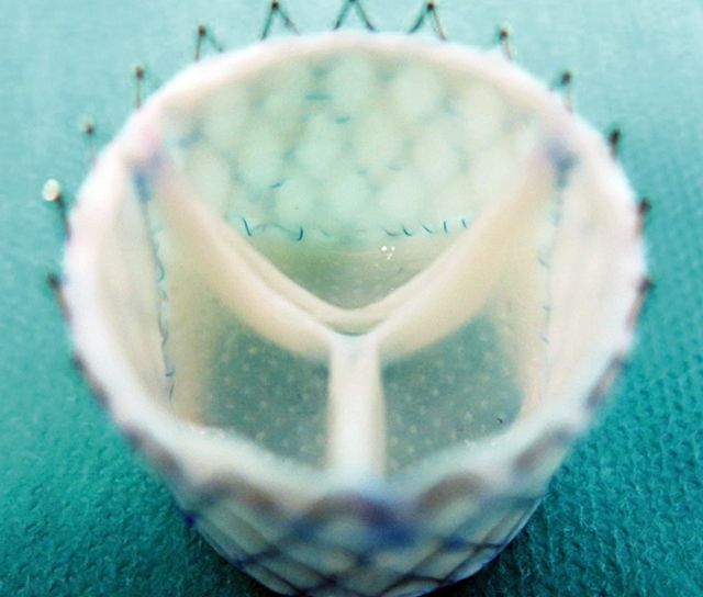 Engineered heart valve