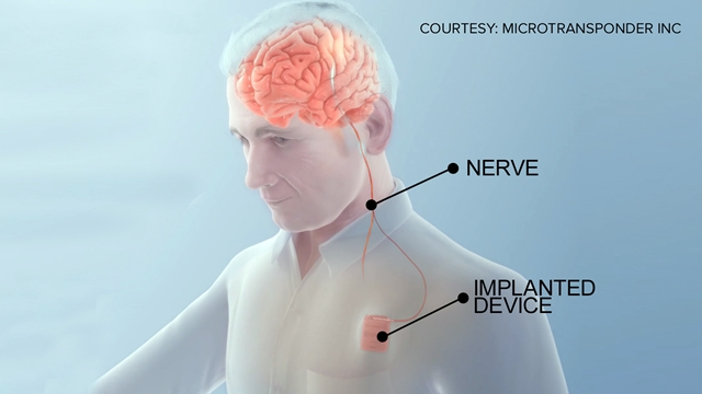 Device and vagus nerve position