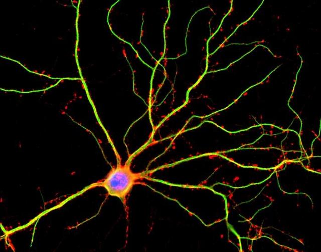 Nerve cells in brain
