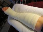 Leg in cast