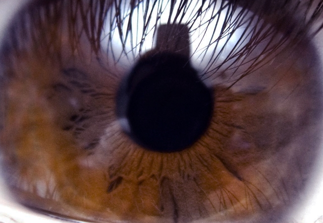 Retina close-up