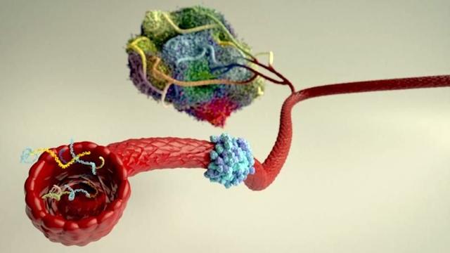 Lung cancer development
