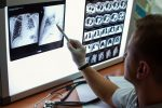 Inspecting lung X-rays
